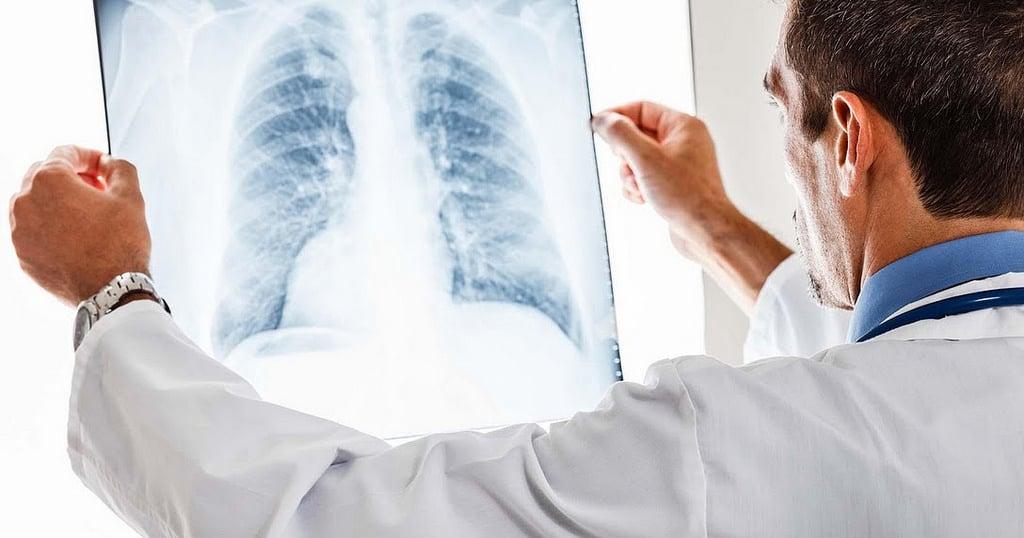 lung cancer awareness