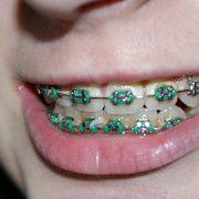 L'orthodontie avancée aide à corriger les problèmes de structure des dents, de mâchoires et de gencives